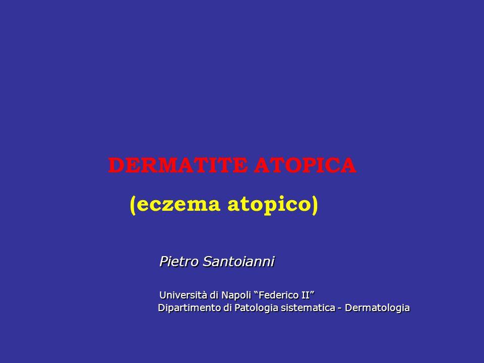 DERMATITE ATOPICA (eczema atopico) Pietro Santoianni Pietro Santoianni Università di Napoli Federico II Università di Napoli Federico II Dipartimento