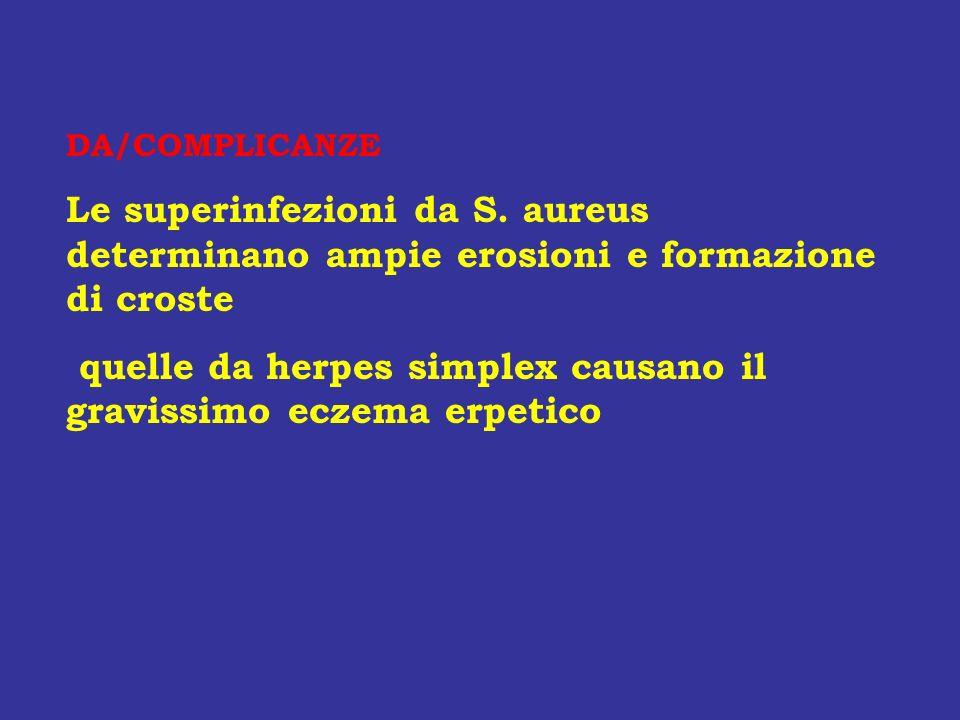 DA/COMPLICANZE Le superinfezioni da S. aureus determinano ampie erosioni e formazione di croste quelle da herpes simplex causano il gravissimo eczema
