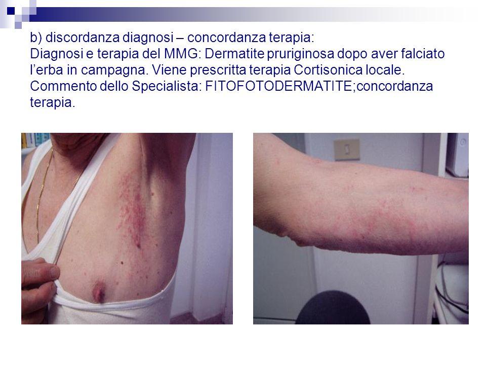 b) discordanza diagnosi – concordanza terapia: Diagnosi e terapia del MMG: Dermatite pruriginosa dopo aver falciato lerba in campagna. Viene prescritt