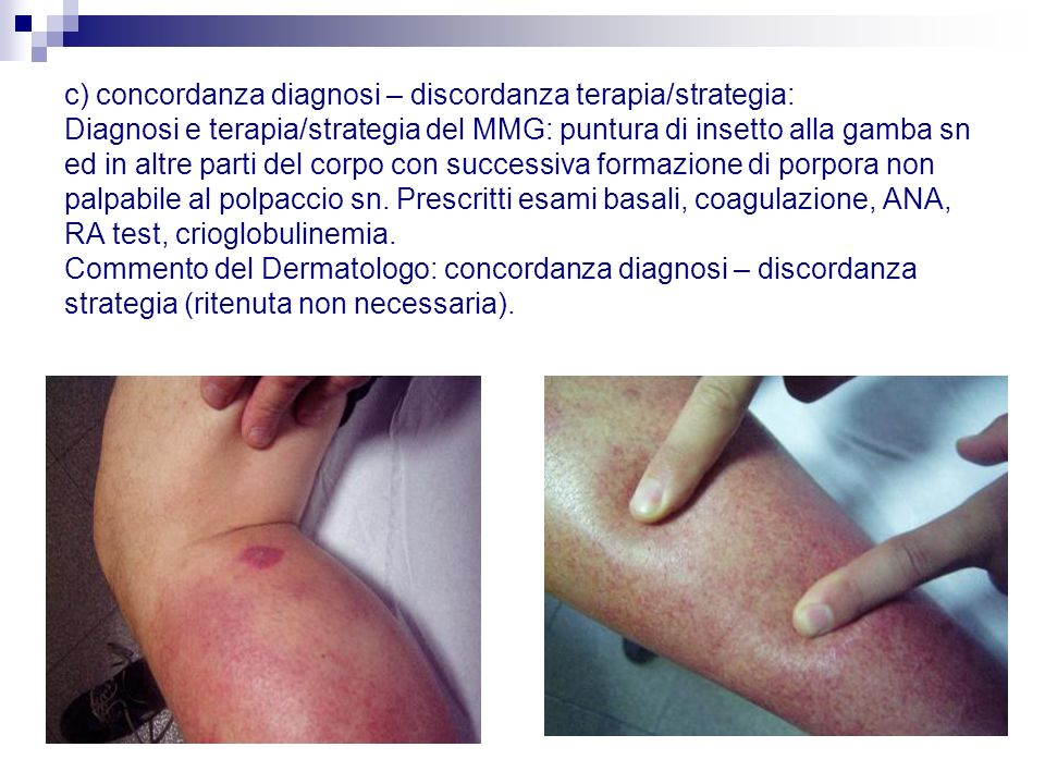 c) concordanza diagnosi – discordanza terapia/strategia: Diagnosi e terapia/strategia del MMG: puntura di insetto alla gamba sn ed in altre parti del