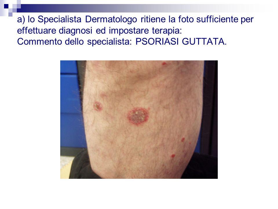 a) lo Specialista Dermatologo ritiene la foto sufficiente per effettuare diagnosi ed impostare terapia: Commento dello specialista: PSORIASI GUTTATA.