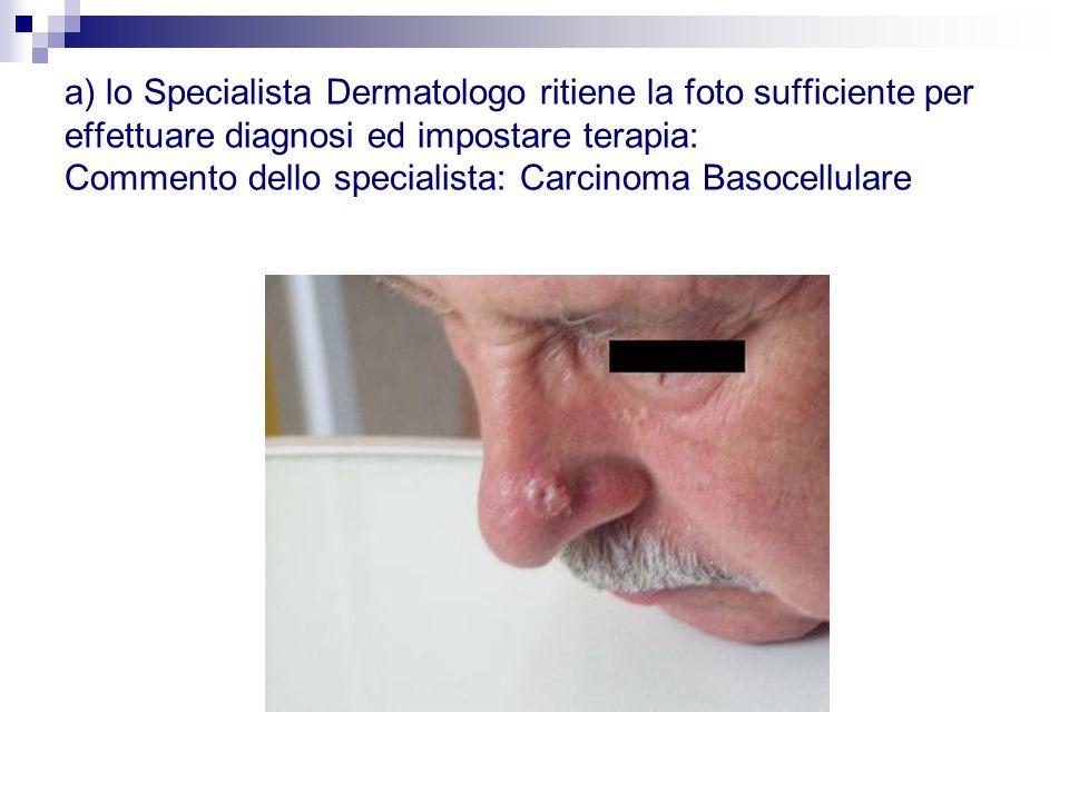 a) lo Specialista Dermatologo ritiene la foto sufficiente per effettuare diagnosi ed impostare terapia: Commento dello specialista: Carcinoma Basocell