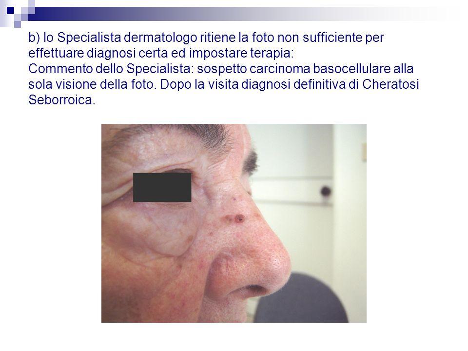 b) lo Specialista dermatologo ritiene la foto non sufficiente per effettuare diagnosi certa ed impostare terapia: Commento dello Specialista: sospetto