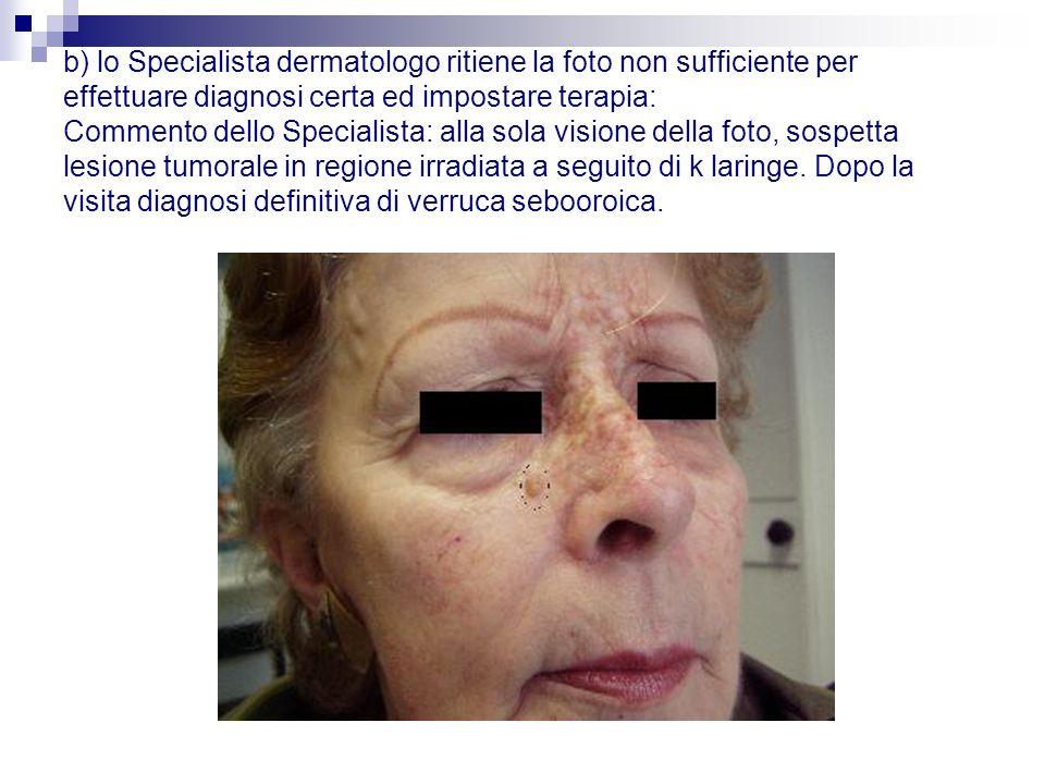 b) lo Specialista dermatologo ritiene la foto non sufficiente per effettuare diagnosi certa ed impostare terapia: Commento dello Specialista: alla sol