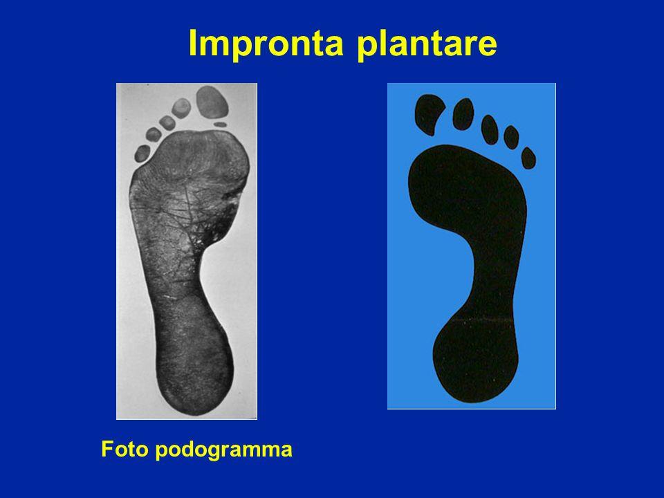 Impronta plantare Foto podogramma