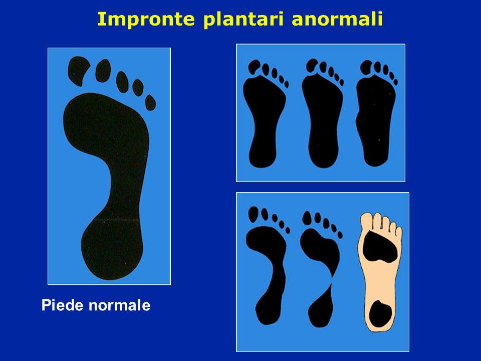 Impronte plantari anormali Piede normale