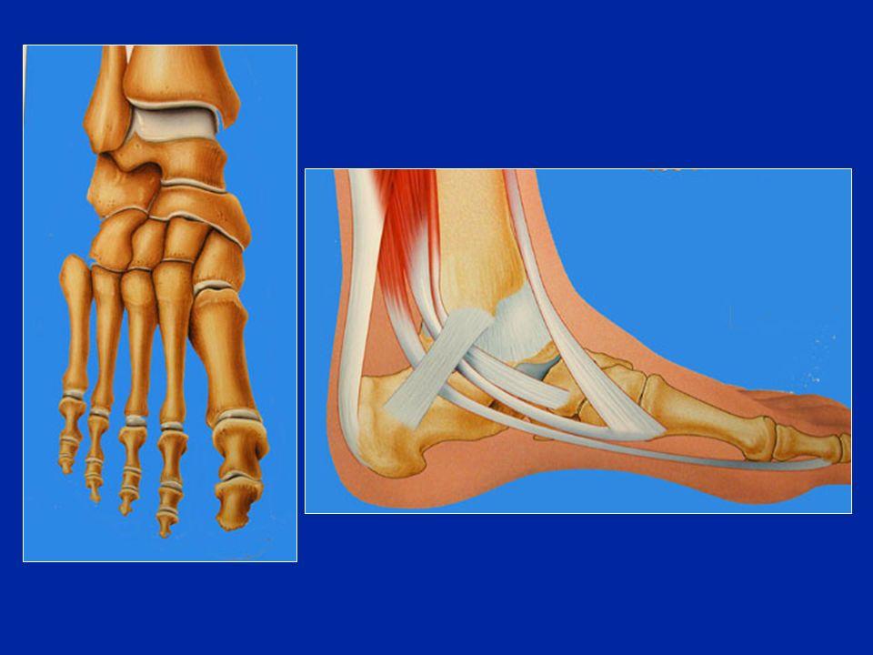 Paralisi dello SPE Paralisi del tricipite Impossibilità a mantenere la posizione sulla punta dei piedi Paralisi dei peronieri Impossibilità alleversione