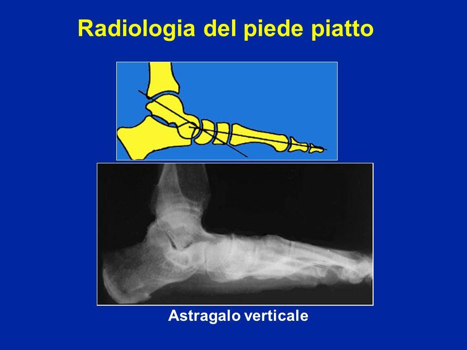 Radiologia del piede piatto Astragalo verticale