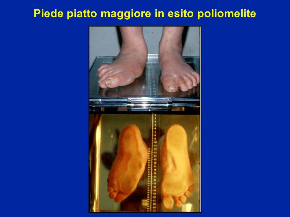 Piede piatto maggiore in esito poliomelite