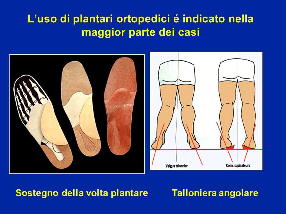 Luso di plantari ortopedici é indicato nella maggior parte dei casi Sostegno della volta plantare Talloniera angolare