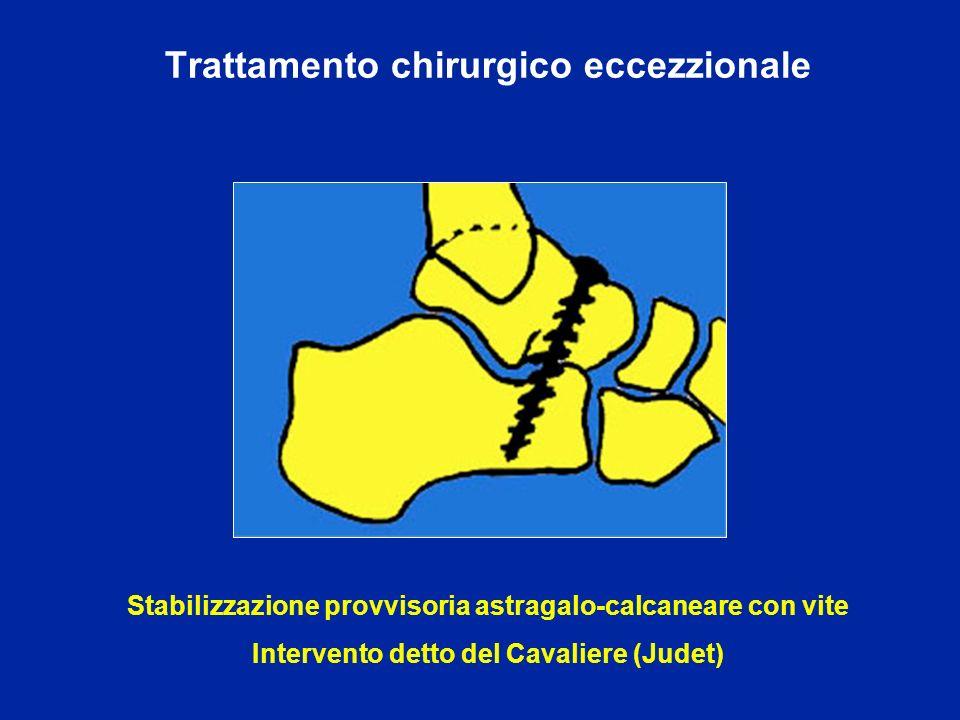 Trattamento chirurgico eccezzionale Stabilizzazione provvisoria astragalo-calcaneare con vite Intervento detto del Cavaliere (Judet)