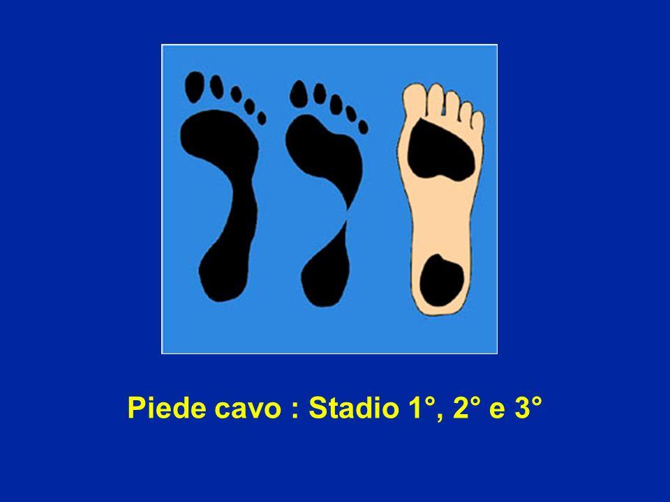Piede cavo : Stadio 1°, 2° e 3°