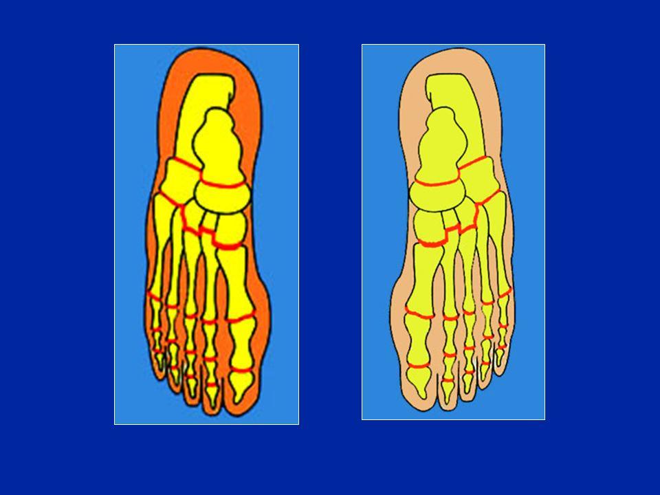 Osteotomie dei M.T I metatarsi che sono troppo lunghi: devono essere accorciati