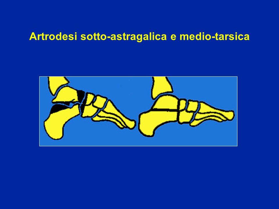Artrodesi sotto-astragalica e medio-tarsica
