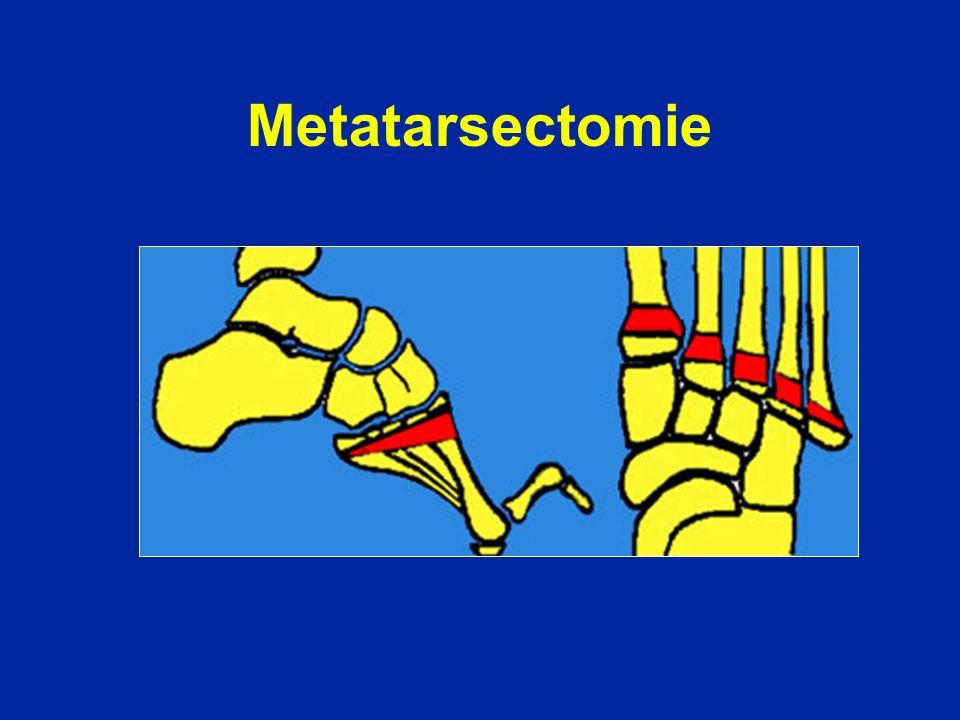 Metatarsectomie