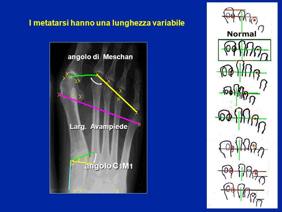 angolo C 1 M 1 Larg. Avampiede angolo di Meschan I metatarsi hanno una lunghezza variabile