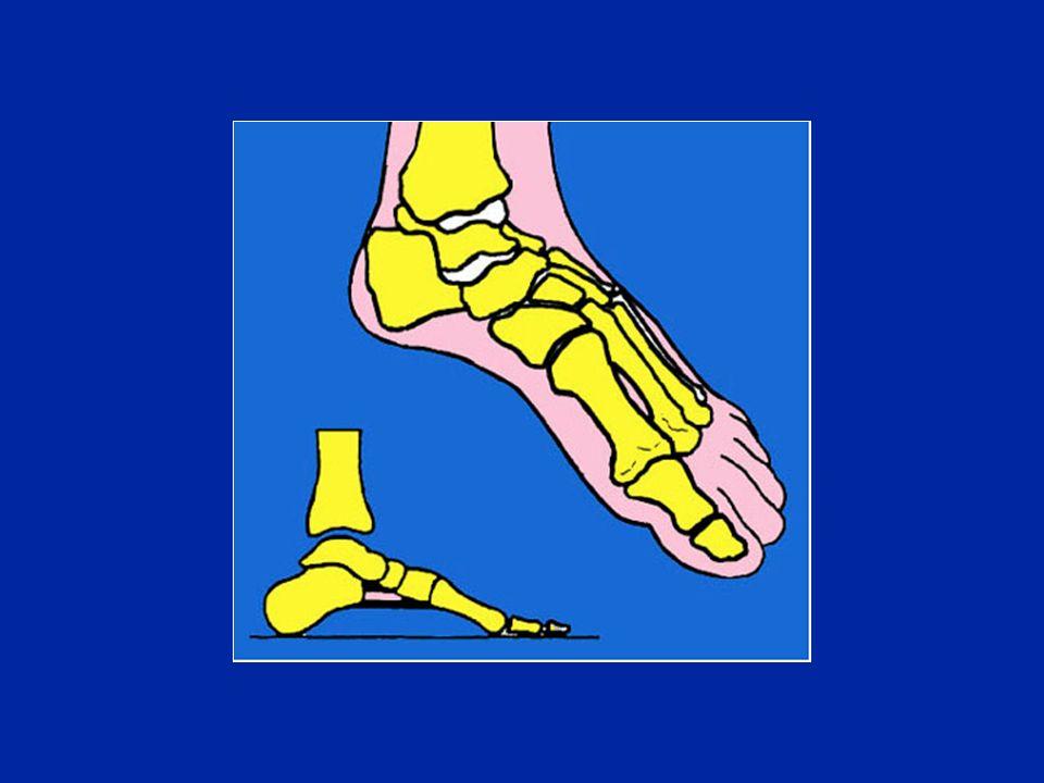 - 3,5 M 5 7 13 -3 M 2 lungo M 3 lungo +1PM 1,5 8 12 -4 Esempio della diversità dei morfotipi del piede Foto JL Besse