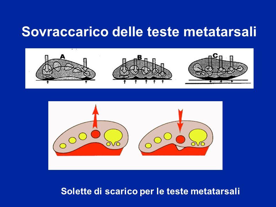 Sovraccarico delle teste metatarsali Solette di scarico per le teste metatarsali