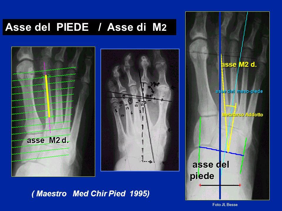 asse M2 d. Asse del PIEDE / Asse di M 2 ( Maestro Med Chir Pied 1995) Metatarso Addotto asse del meso-piede asse M2 d. asse del piede asse del piede F