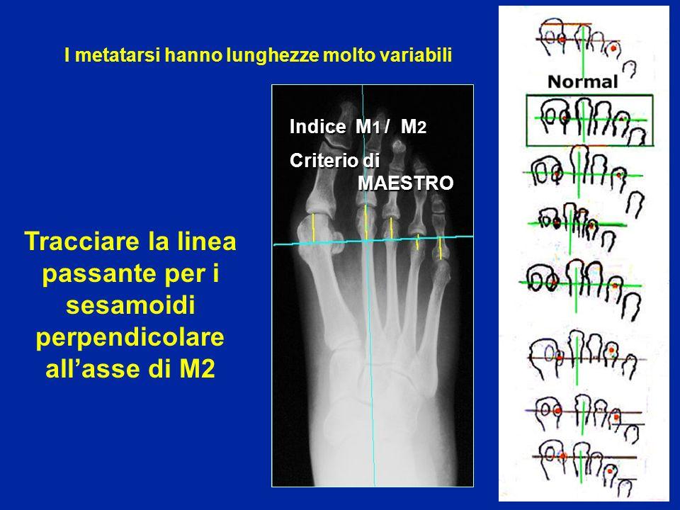 Indice M 1 / M 2 Criterio di MAESTRO I metatarsi hanno lunghezze molto variabili Tracciare la linea passante per i sesamoidi perpendicolare allasse di