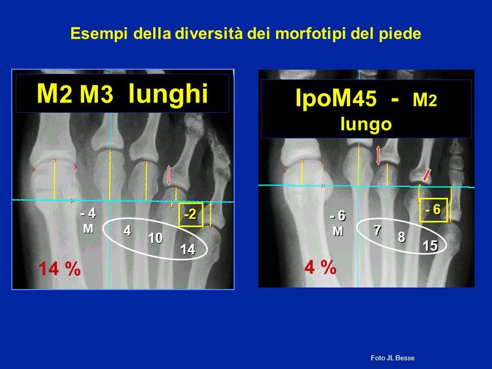 M 2 M3 lunghi 14 - 4 M 4 10 -2 14 % Esempi della diversità dei morfotipi del piede IpoM 45 - M 2 lungo 15 - 6 M 7 8 4 % Foto JL Besse