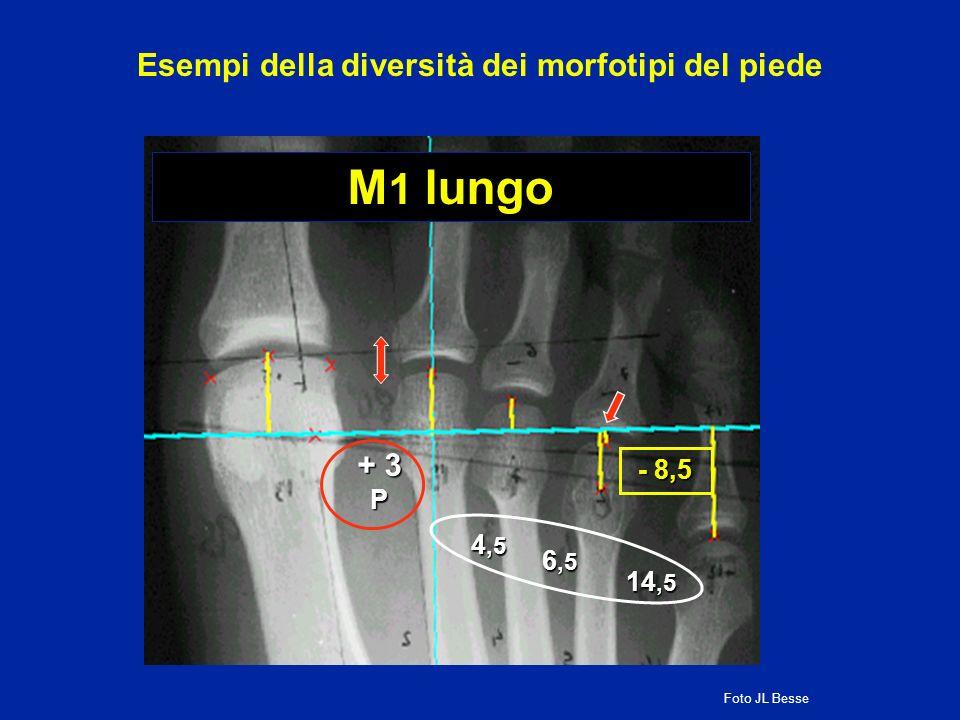 M 1 lungo 14,5 + 3 P 4,5 6,5 - 8,5 Esempi della diversità dei morfotipi del piede Foto JL Besse