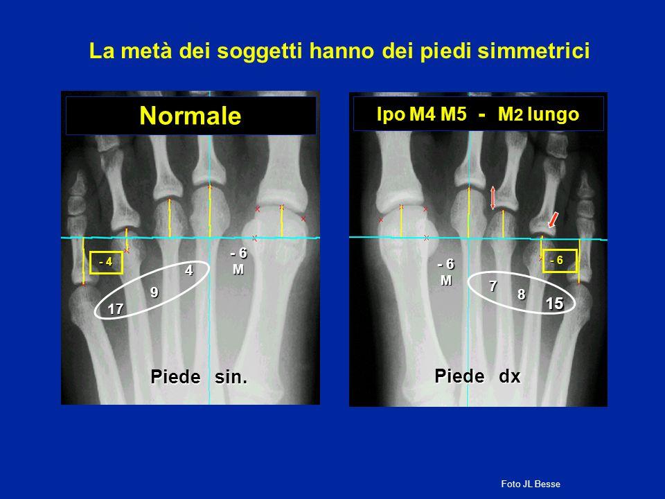 Normale - 6 M - 4 4 9 17 Piede sin. Ipo M4 M5 - M 2 lungo 15 - 6 M 7 8 Piede dx La metà dei soggetti hanno dei piedi simmetrici Foto JL Besse