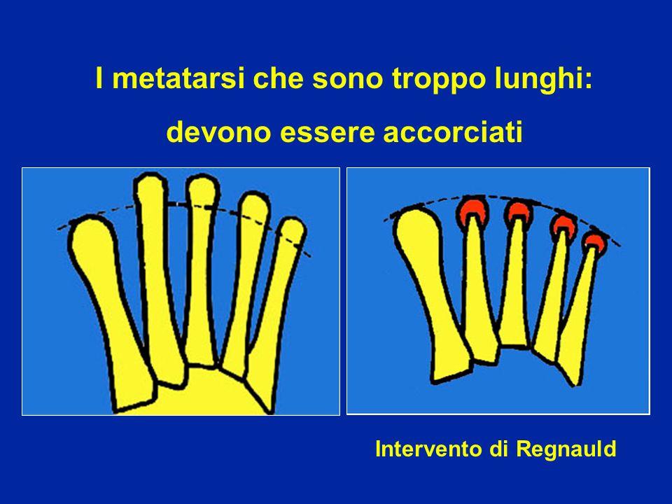 Intervento di Regnauld I metatarsi che sono troppo lunghi: devono essere accorciati