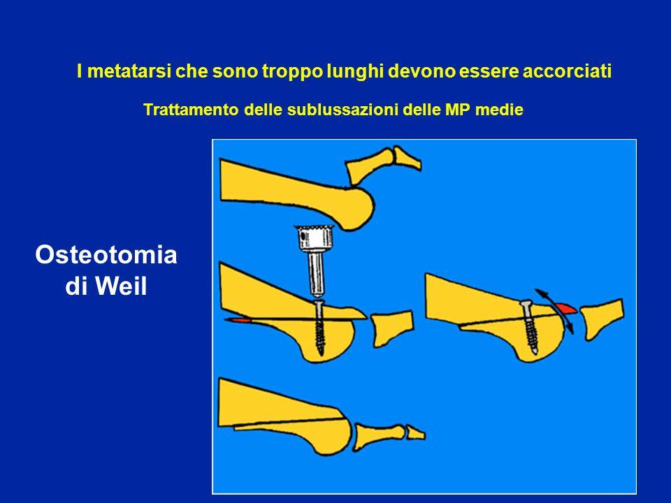 Trattamento delle sublussazioni delle MP medie Osteotomia di Weil I metatarsi che sono troppo lunghi devono essere accorciati