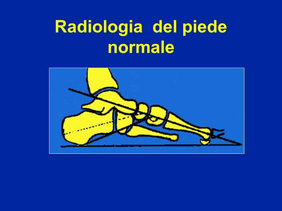 Artrodesi tibio-astragalica