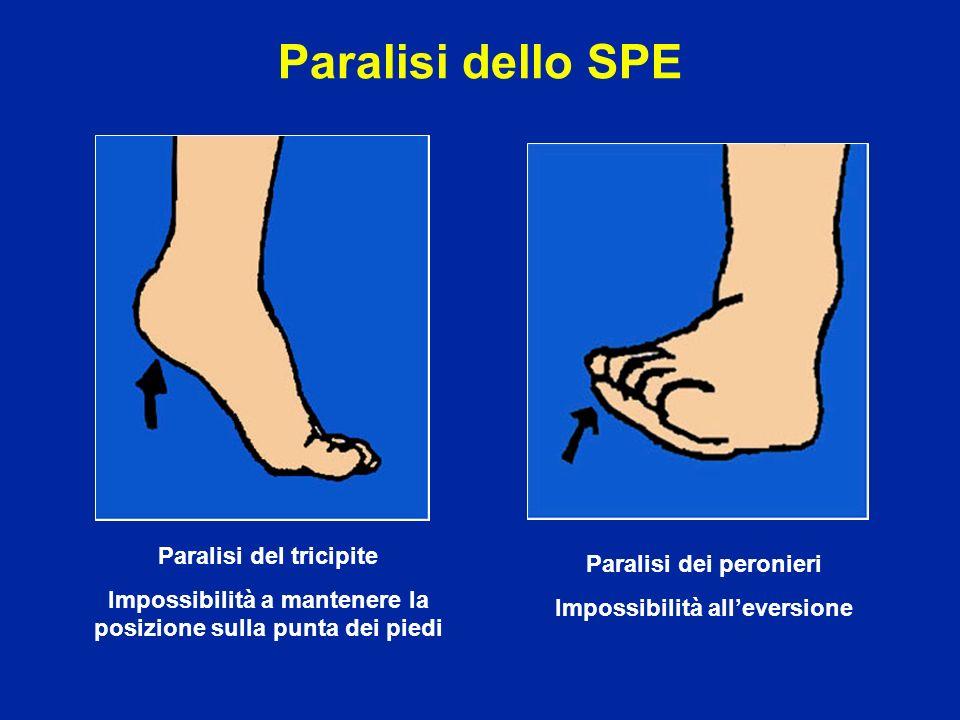 Paralisi dello SPE Paralisi del tricipite Impossibilità a mantenere la posizione sulla punta dei piedi Paralisi dei peronieri Impossibilità alleversio