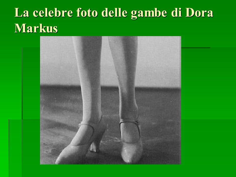 La celebre foto delle gambe di Dora Markus