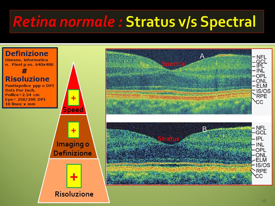 12 Speed Risoluzione Spectral Stratus + + Imaging o Definizione + Dimens. informatica n. Pixel p.es. 640x480 # Risoluzione Puntixpolice ppp o DPI Dots