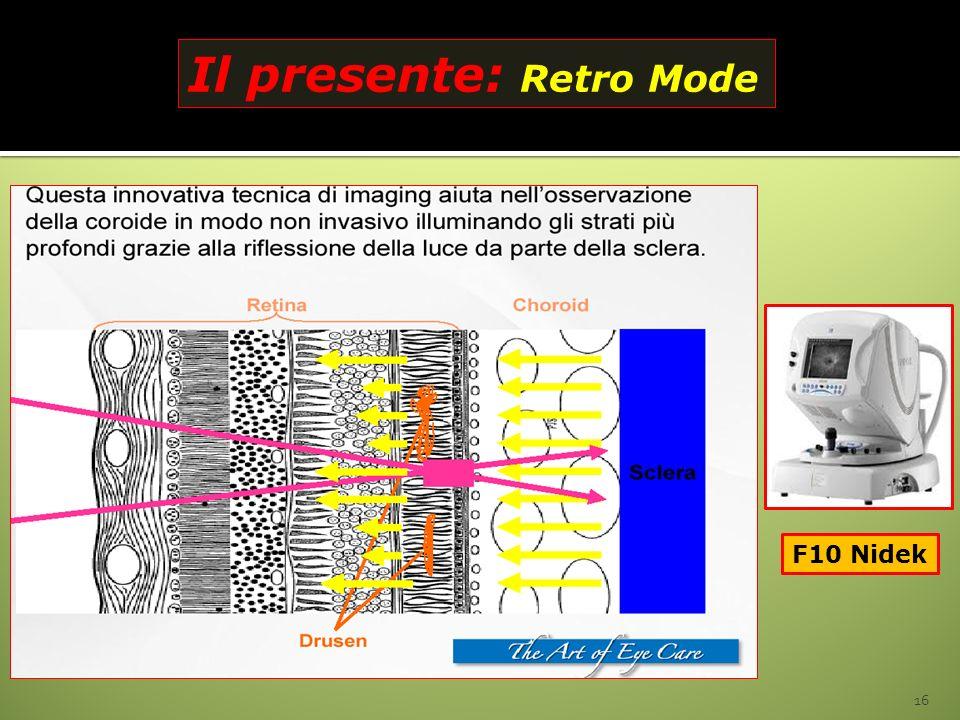 16 Il presente: Retro Mode F10 Nidek