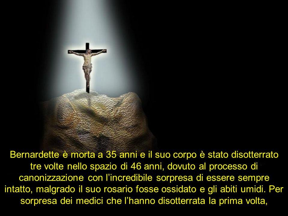 Bernardette è morta a 35 anni e il suo corpo è stato disotterrato tre volte nello spazio di 46 anni, dovuto al processo di canonizzazione con lincredibile sorpresa di essere sempre intatto, malgrado il suo rosario fosse ossidato e gli abiti umidi.