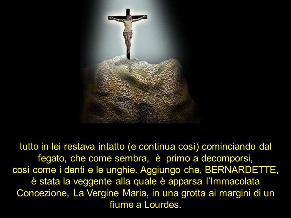 Bernardette è morta a 35 anni e il suo corpo è stato disotterrato tre volte nello spazio di 46 anni, dovuto al processo di canonizzazione con lincredi