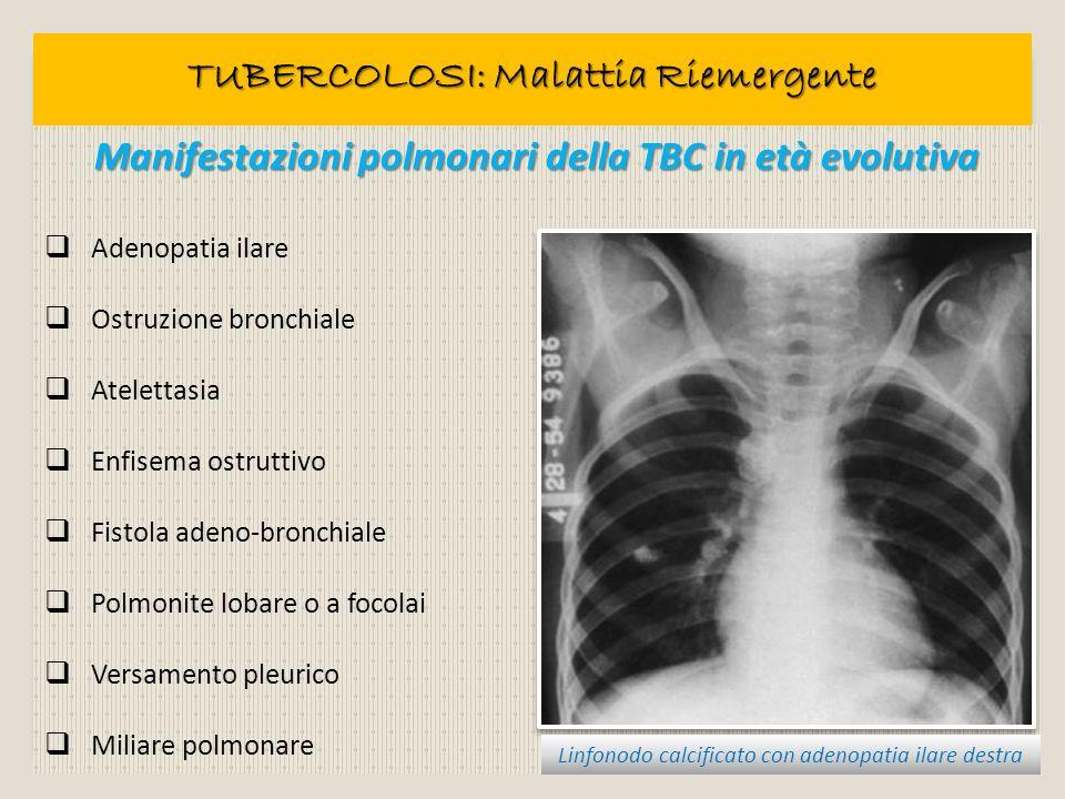 Manifestazioni polmonari della TBC in età evolutiva Adenopatia ilare Ostruzione bronchiale Atelettasia Enfisema ostruttivo Fistola adeno-bronchiale Po