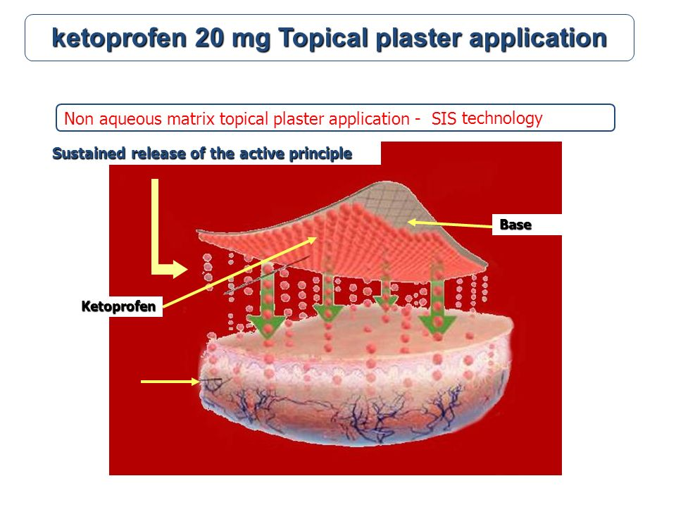 Non aqueous matrix topical plaster application - SIS ketoprofen 20 mg Topical plaster application Ketoprofen Base Sustained release of the active principle technology