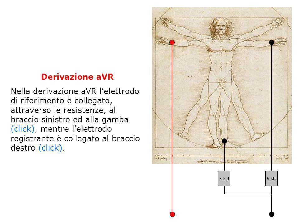 Derivazione aVR Nella derivazione aVR lelettrodo di riferimento è collegato, attraverso le resistenze, al braccio sinistro ed alla gamba (click), ment