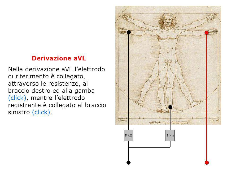 Derivazione aVL Nella derivazione aVL lelettrodo di riferimento è collegato, attraverso le resistenze, al braccio destro ed alla gamba (click), mentre