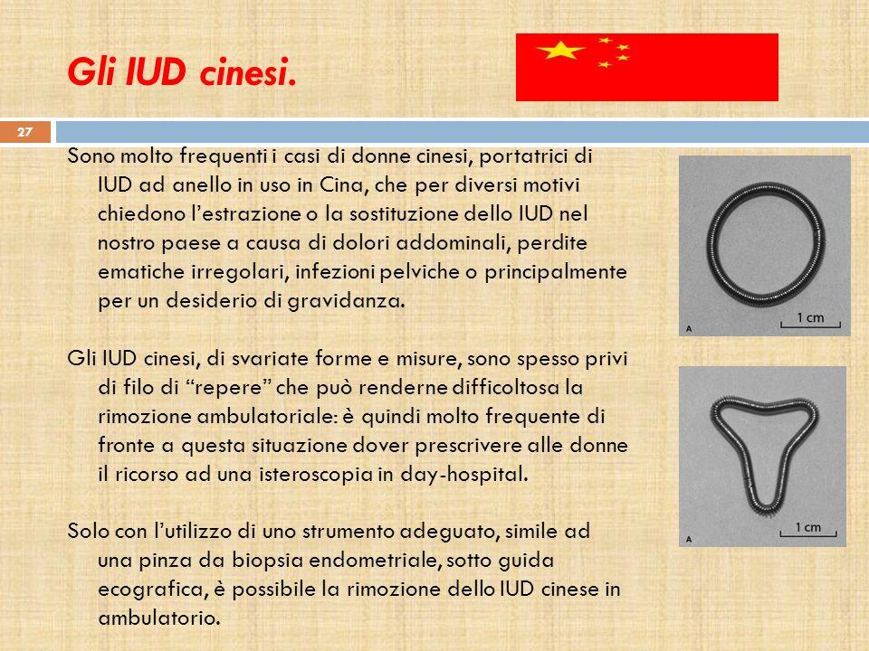Gli IUD cinesi. Sono molto frequenti i casi di donne cinesi, portatrici di IUD ad anello in uso in Cina, che per diversi motivi chiedono lestrazione o