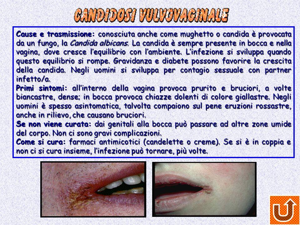 Cause e trasmissione: conosciuta anche come mughetto o candida è provocata da un fungo, la Candida albicans. La candida è sempre presente in bocca e n