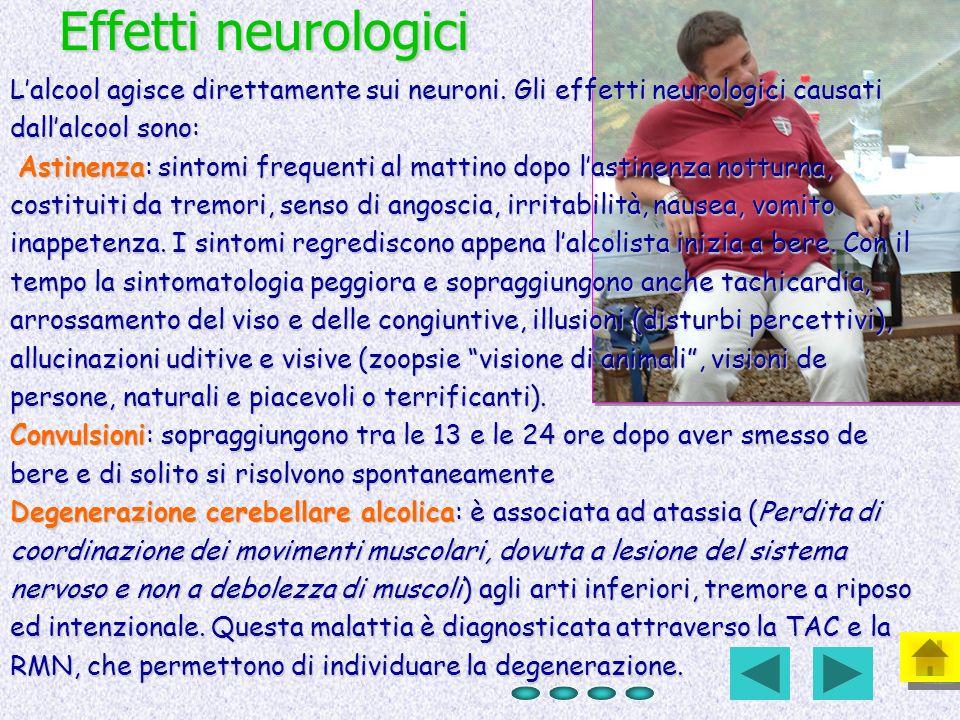 Effetti neurologici Lalcool agisce direttamente sui neuroni. Gli effetti neurologici causati dallalcool sono: Astinenza: sintomi frequenti al mattino