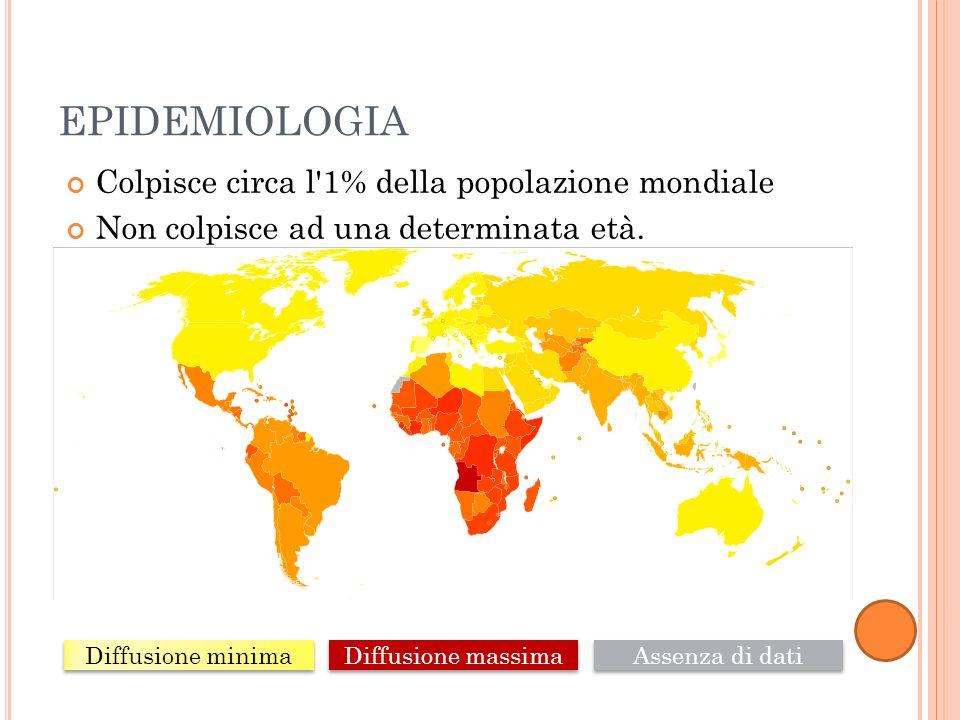 EPIDEMIOLOGIA Colpisce circa l'1% della popolazione mondiale Non colpisce ad una determinata età. Diffusione minima Diffusione massima Assenza di dati