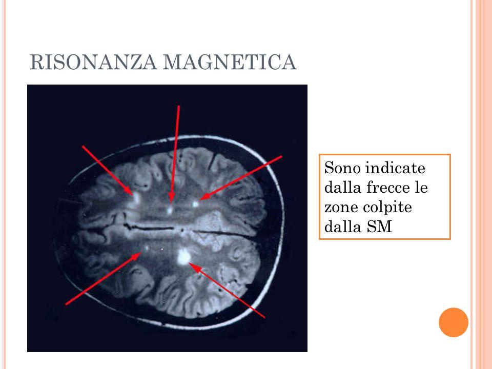 RISONANZA MAGNETICA Sono indicate dalla frecce le zone colpite dalla SM