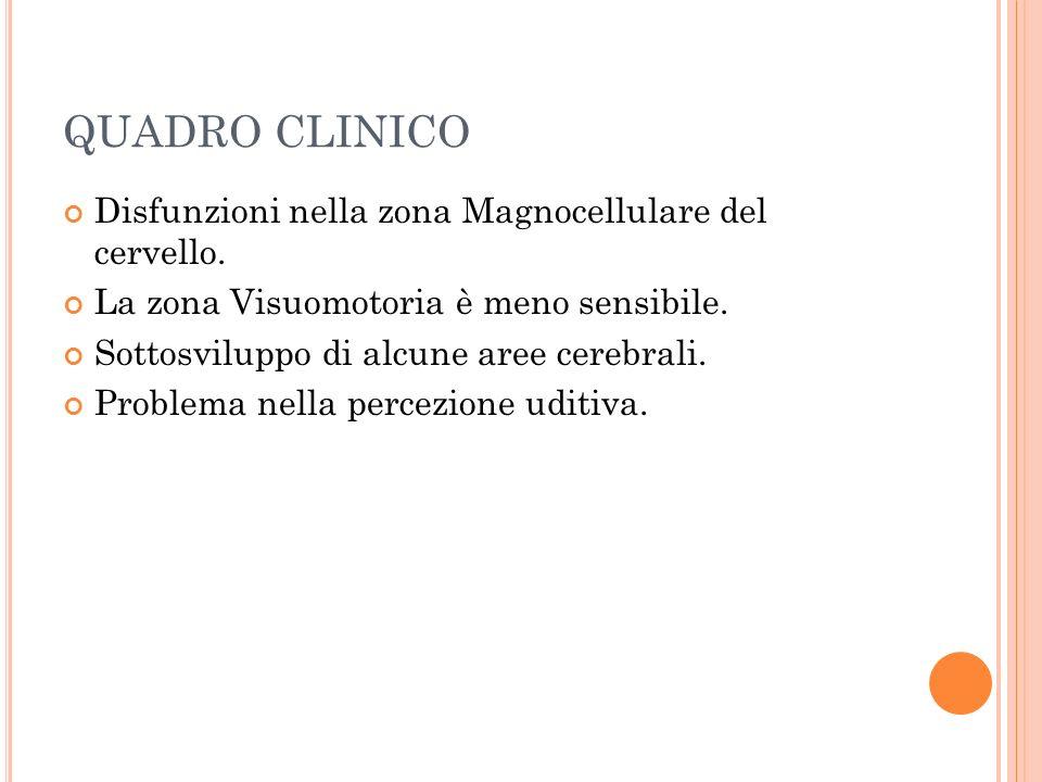 QUADRO CLINICO Disfunzioni nella zona Magnocellulare del cervello. La zona Visuomotoria è meno sensibile. Sottosviluppo di alcune aree cerebrali. Prob
