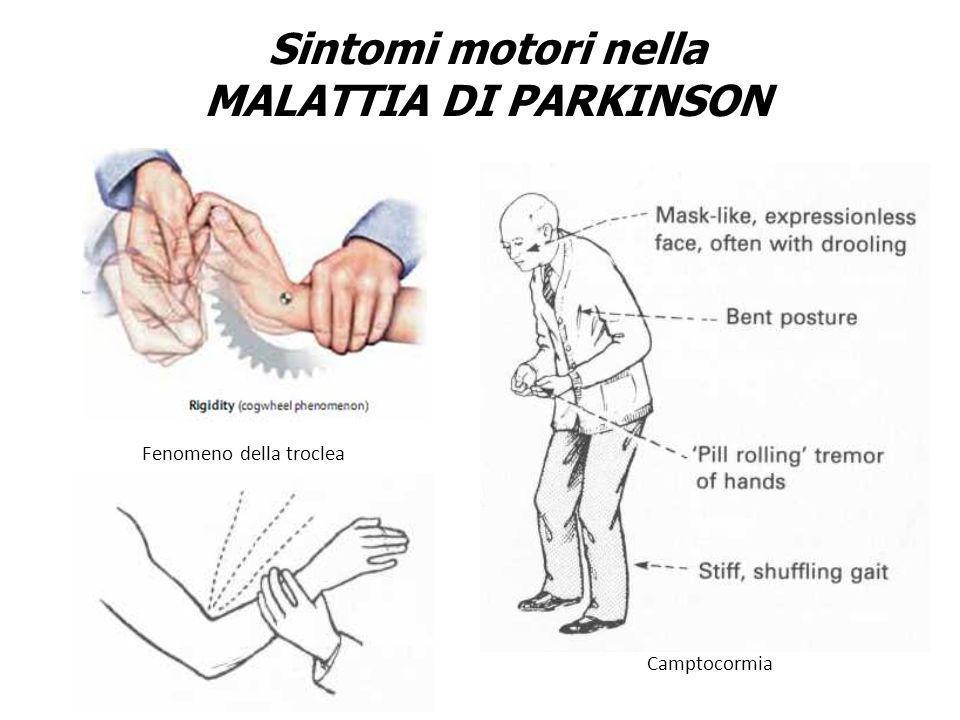Sintomi motori nella MALATTIA DI PARKINSON Fenomeno della troclea Camptocormia