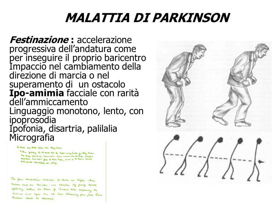 MALATTIA DI PARKINSON Adiadococinesia Andatura festinante Micrografia Festinazione : accelerazione progressiva dellandatura come per inseguire il prop