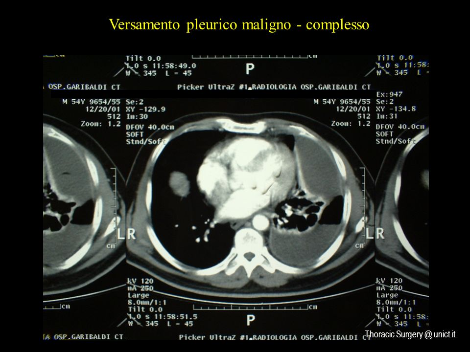 Versamento pleurico maligno - complesso Thoracic Surgery @ unict.it