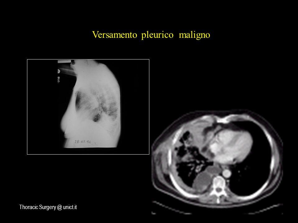 Versamento pleurico maligno Thoracic Surgery @ unict.it
